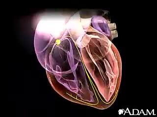 Cardiac Arrhythmia[1]